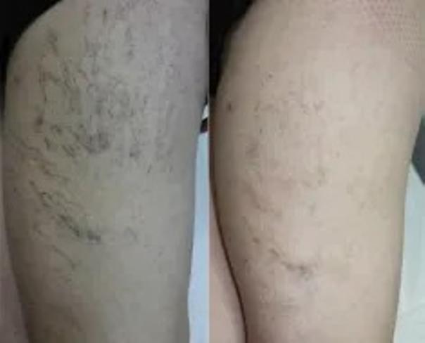 Efekty laserowego leczenia żylaków