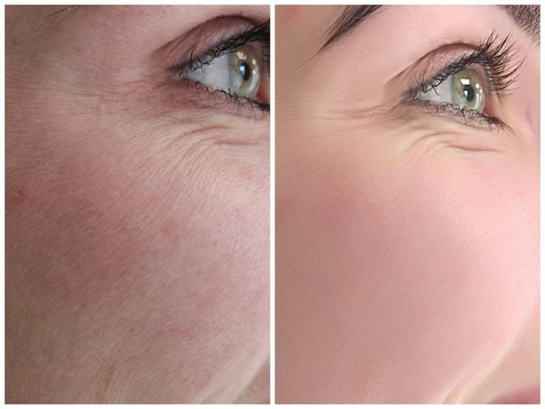 Laseroterapia: przed i po