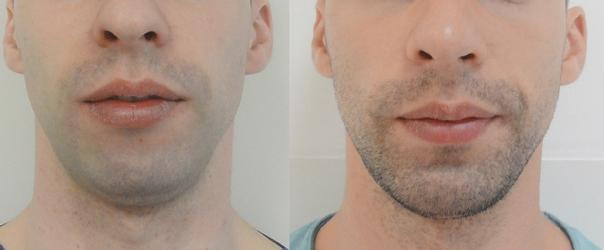 Implanty brody - efekty