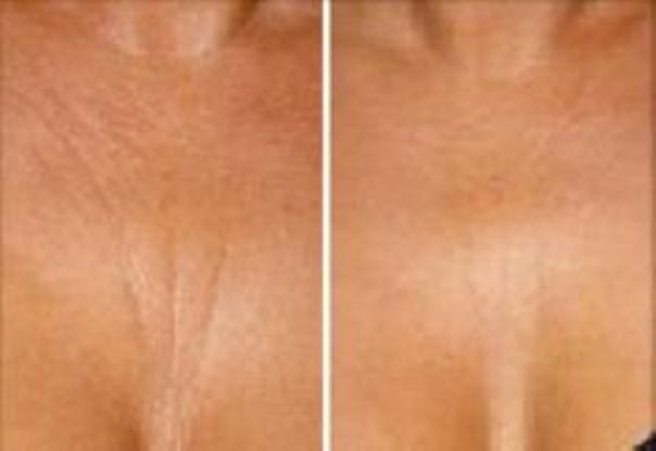 Laserowe usuwanie blizn: efekty