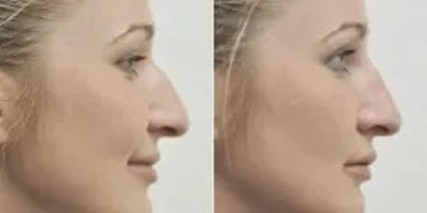 Efekty modelowania nosa kwasem hialuronowym