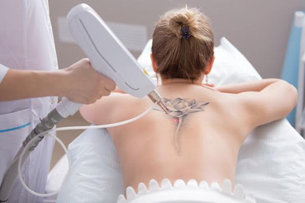 Zabieg laserowego usuwania tatuażu
