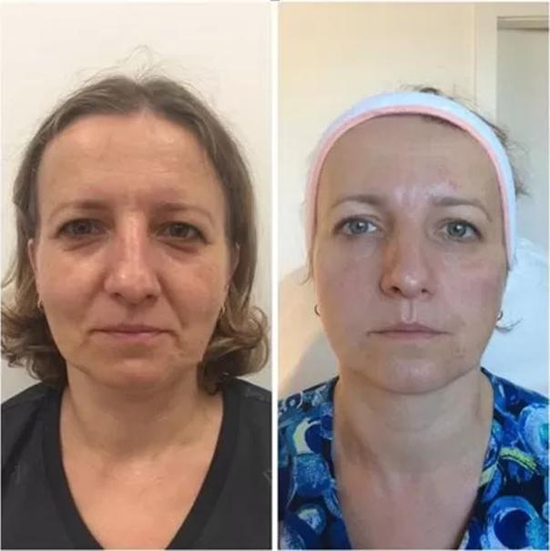 Wolumetria przed i po
