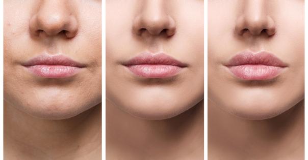 Efekty powiększania ust kwasem hialuronowym