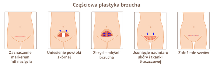 Schemat miniabdominoplastyki