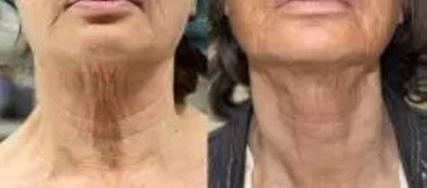 Nieinwazyjny lifting przed i po