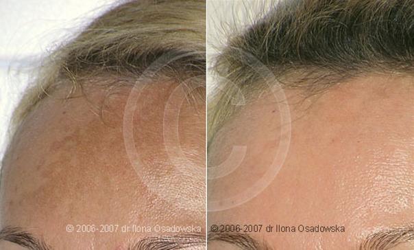 Peeling - przed i po