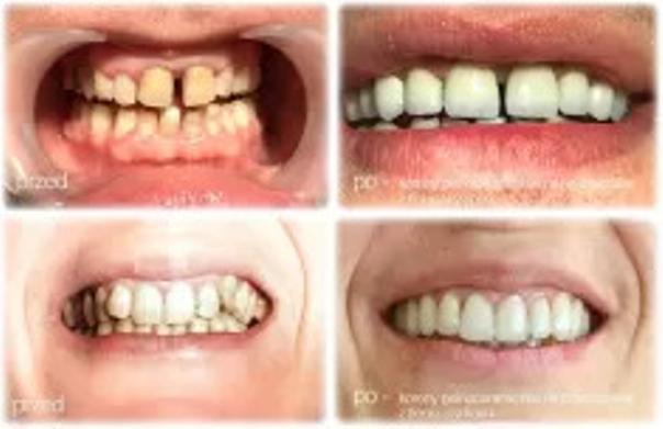 Zęby po założeniu koron porcelanowych
