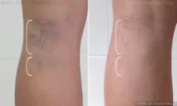 Skleroterapia pajączków - efekty