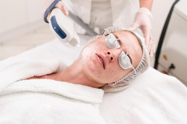 Laserowe leczenie trądziku