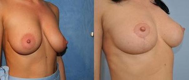 Mastopeksja: przed i po