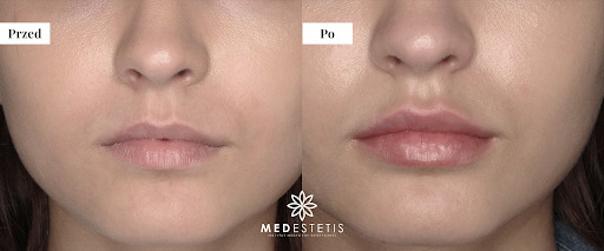 Powiększanie ust tłuszczem: przed i po