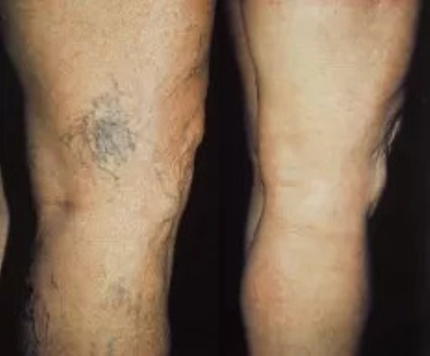 Efekty skleroterapii