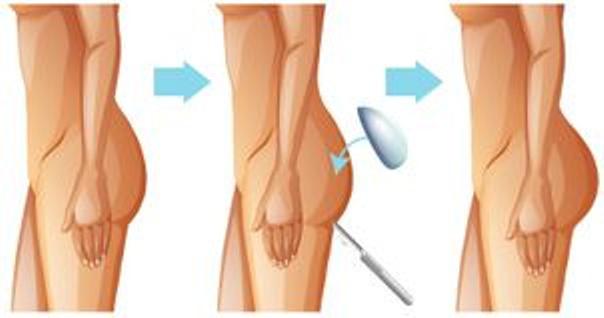 Implanty pośladków