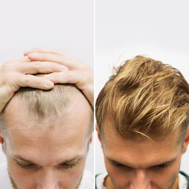 Przeszczep włosów efekty