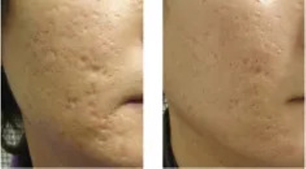 Laseroterapia blizn potrądzikowych - przed i po