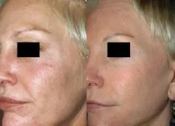 Laseroterapia - przed i po