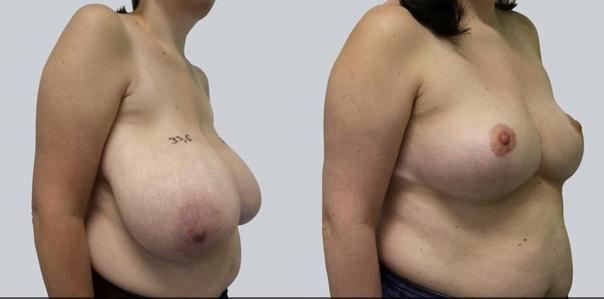 Zmniejszenie piersi z mastopeksją - efekty