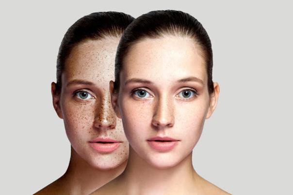 Laseroterapia na przebarwienia
