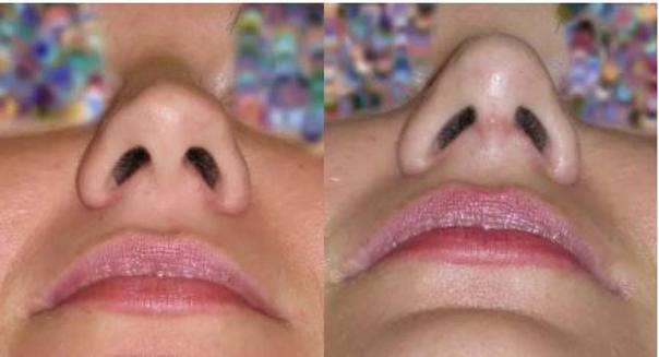 Blizna po korekcji nosa