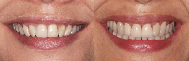 Metamorfoza uśmiechu: licówki