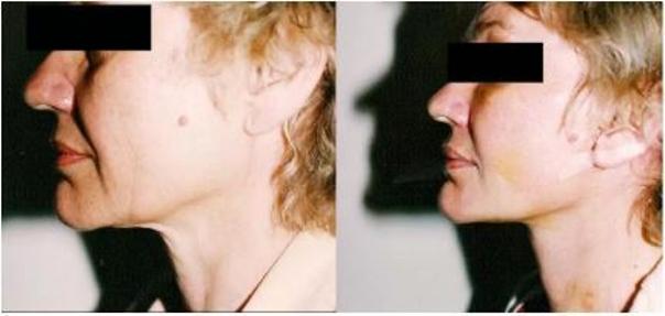 Lifting twarzy - dr Tadeusz Witwicki
