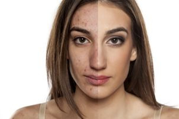 Laserowe zabiegi dermatologii estetycznej