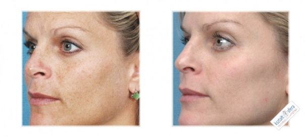 Fototerapia - przed i po