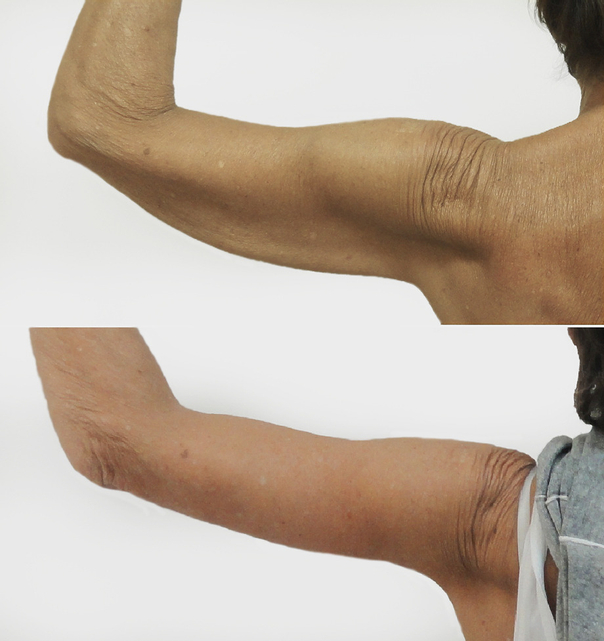 Lifting ramion - efekty