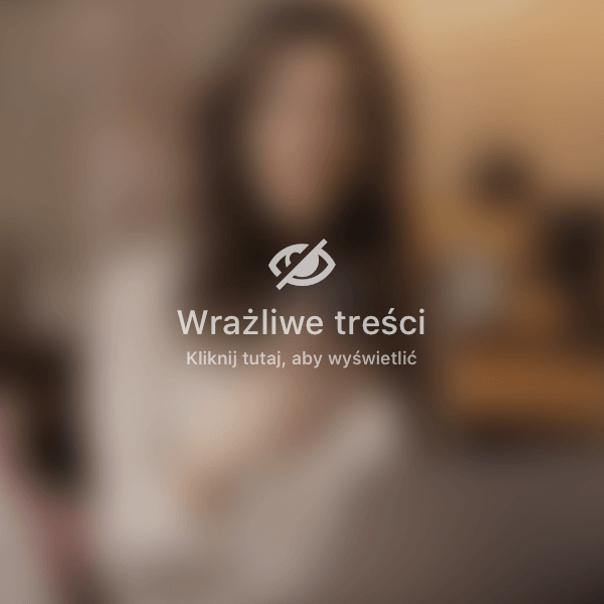 Zdjęęcia przed-po zabiegu zmniejszenie piersi - archiwum dr Konrada Januszka
