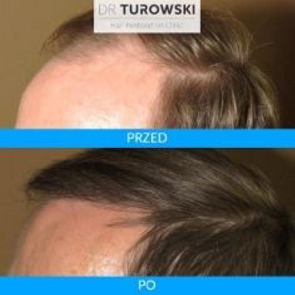 Efekty terapii łysienia