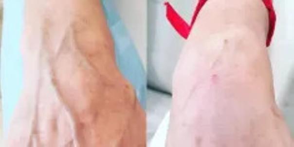 Kwas hialuronowy: odmładzanie dłoni