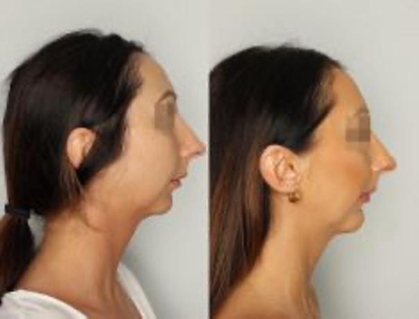 Plastyka brody: przed i po