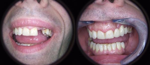 Implanty i korony - przed i po