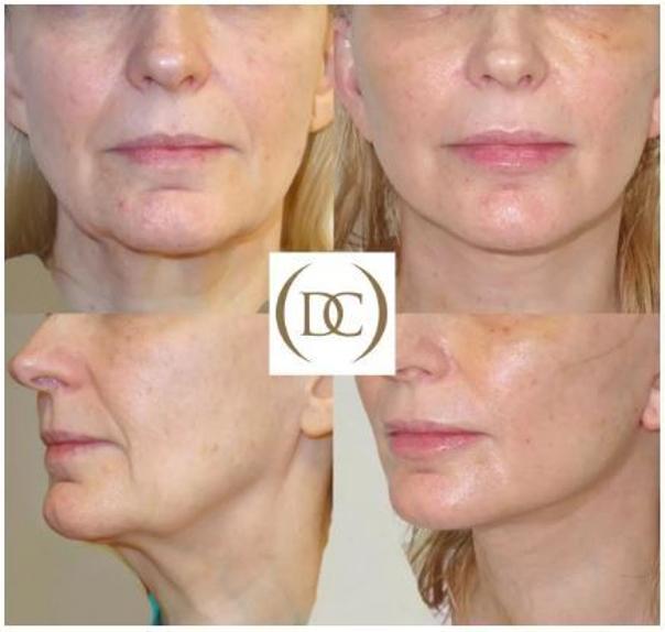 Lifting twarzy powoduje wzrost napięcia skóry, poprawienie owalu twarzy, wygładzenie zmarszczek, wymodelowanie i korektę rysów twarzy - dr Piotr Osuch