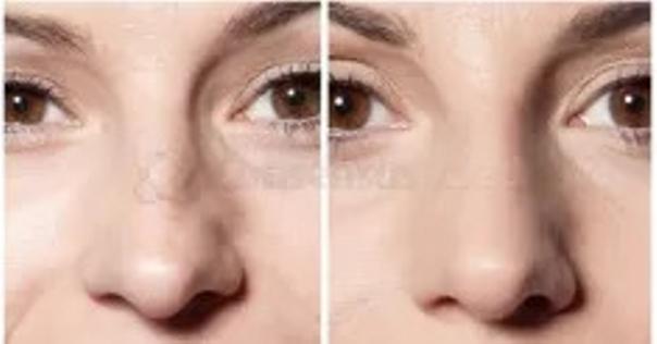 Modelowanie nosa kwasem hialuronowym: przed i po