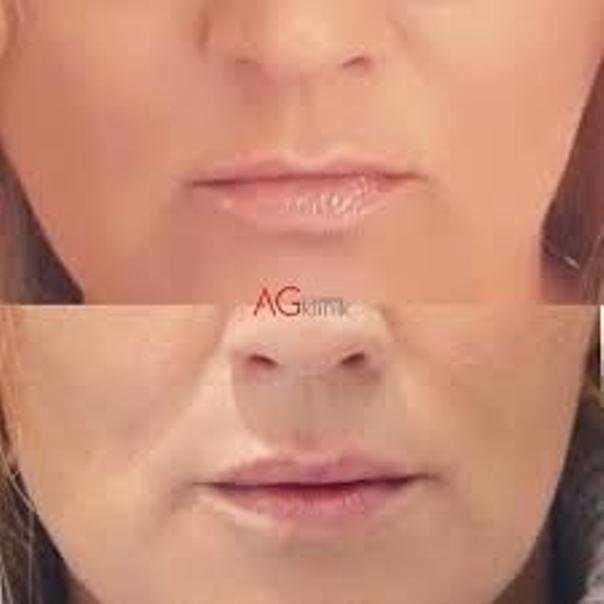 Lipofilling ust – efekty