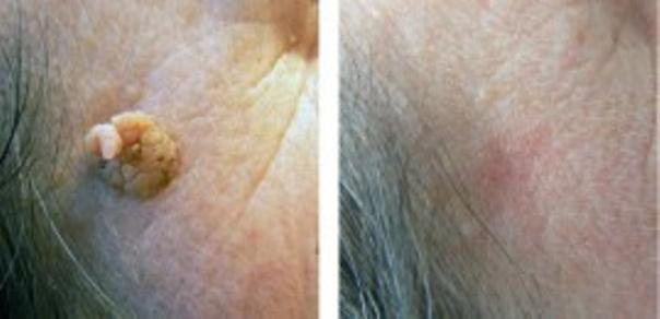 Usuwanie zmian skórnych laserem - efekty