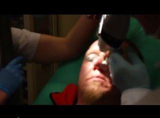 Laserowe leczenie Rhinophymy