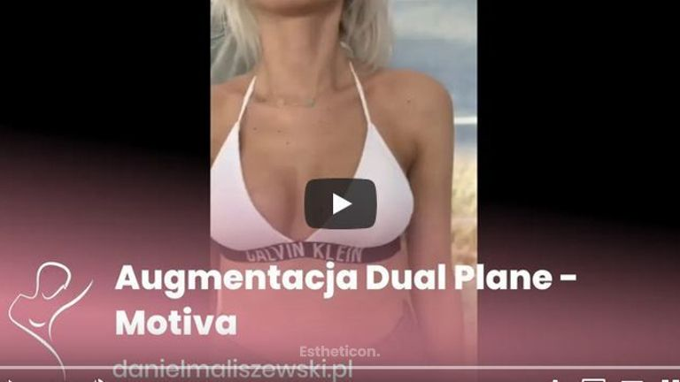 Augmentacja Dual Plane implantami Motiva
