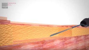 Liposukcja infradźwiękowa NIL