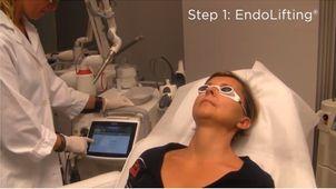 Odmładzający zabieg laserowy na twarz