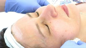 Karboksyterapia - usuwanie cellulitu